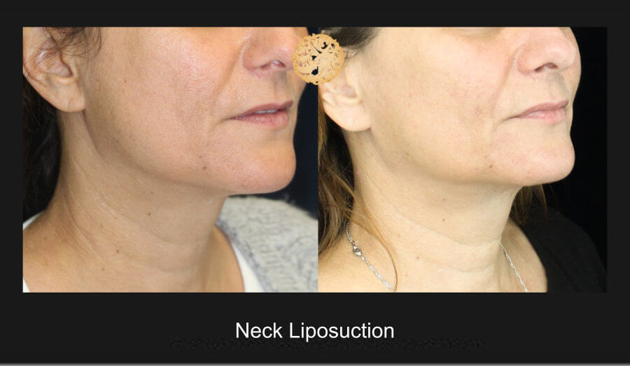 neck-liposuction-9