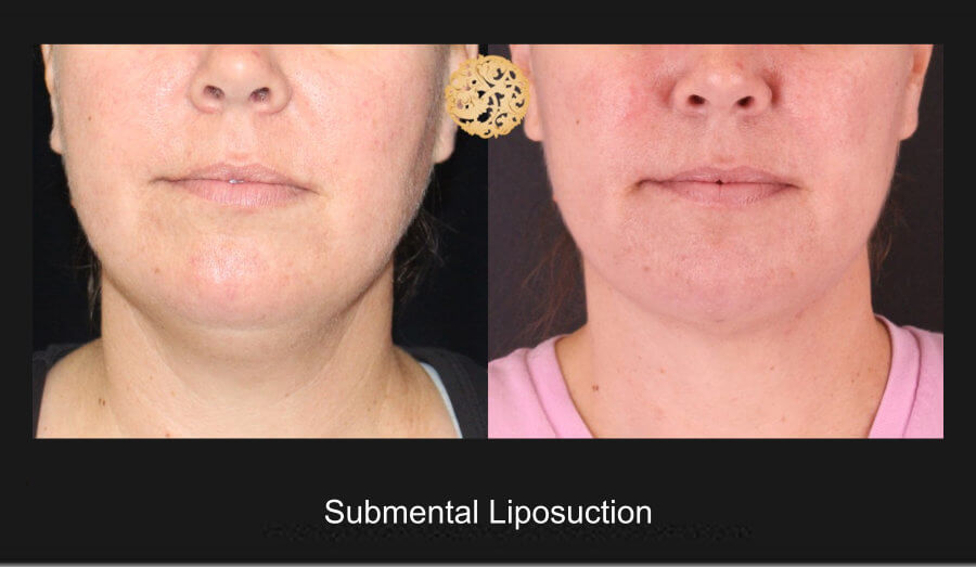 neck-liposuction-4