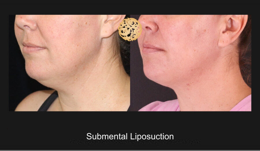 neck-liposuction-6