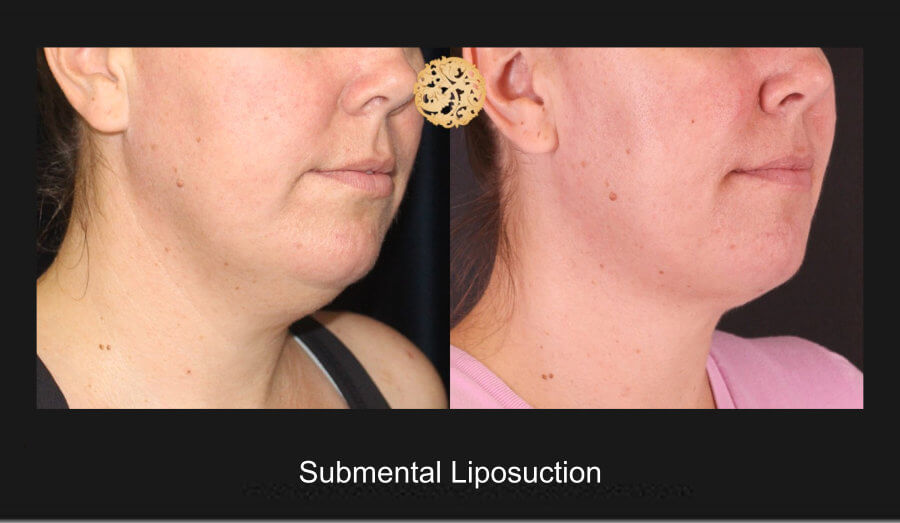 neck-liposuction-8