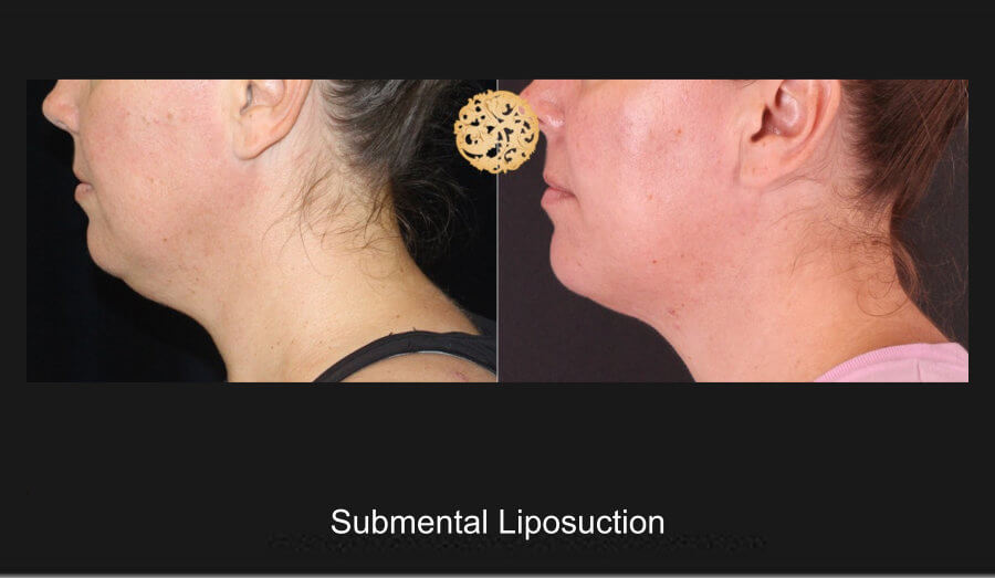 neck-liposuction-10