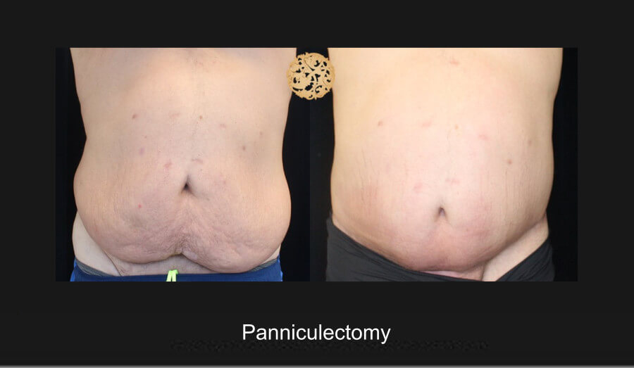 panniculectomy-1