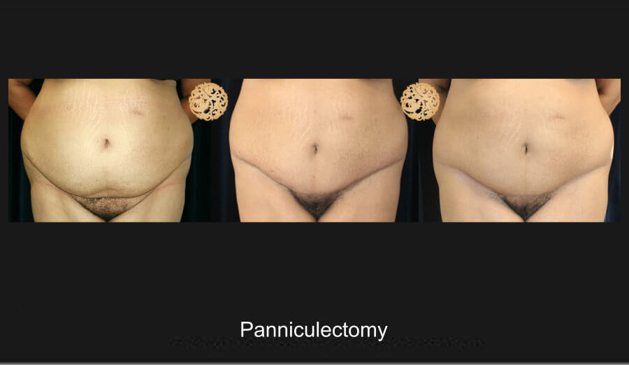 panniculectomy-1a