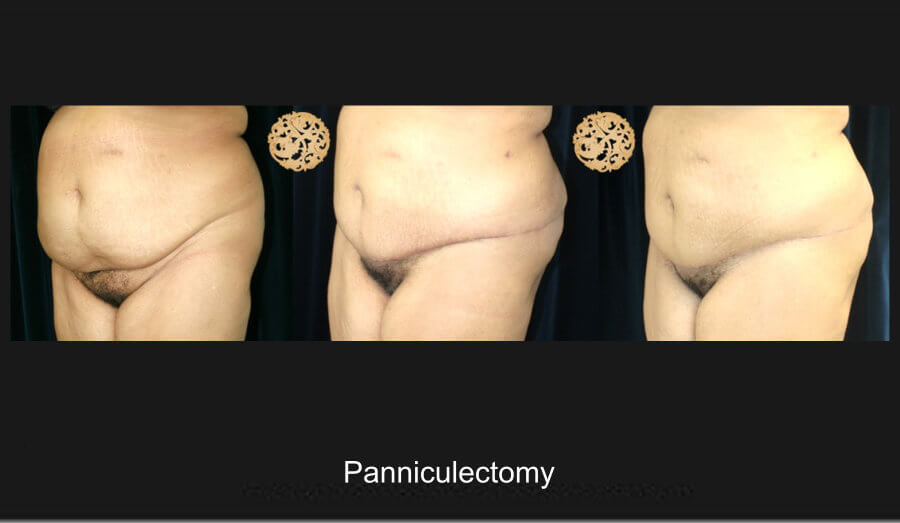 panniculectomy-1b