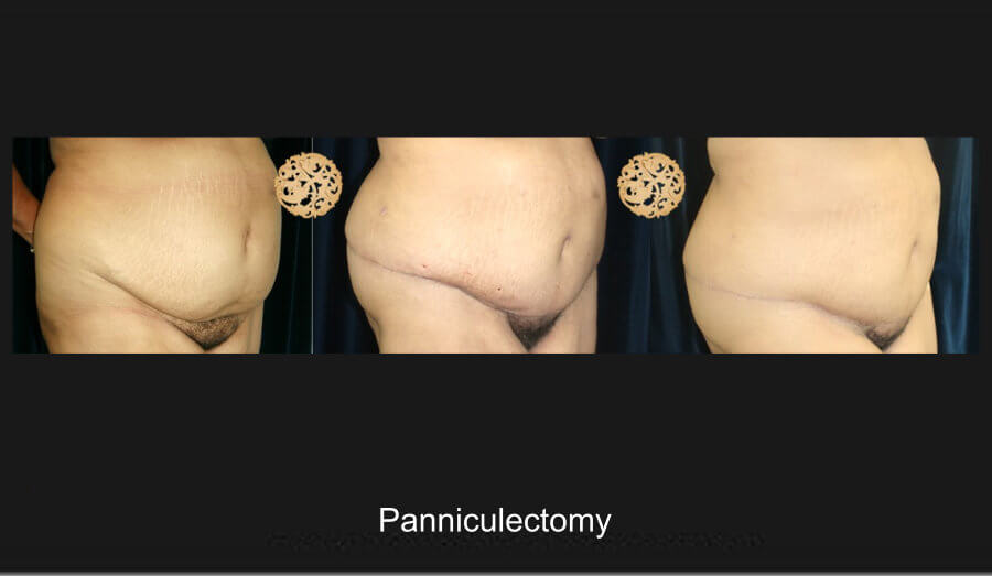panniculectomy-1c