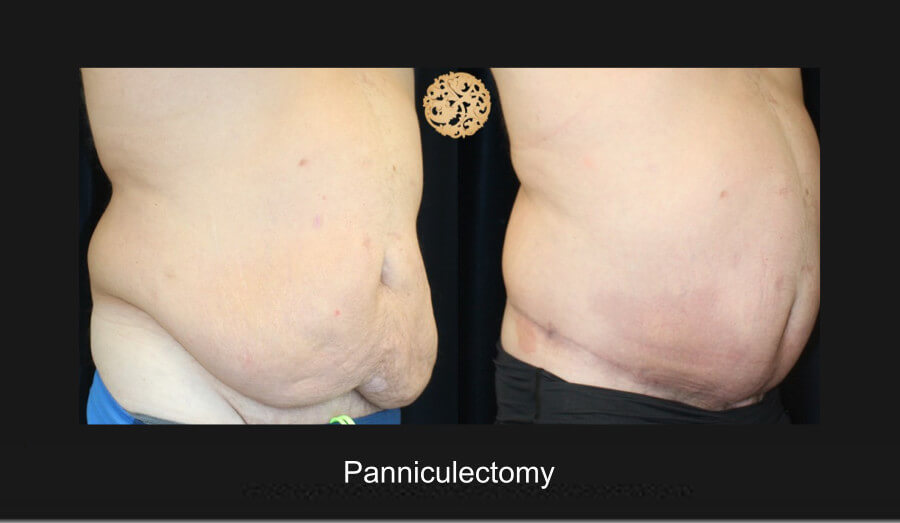 panniculectomy-2