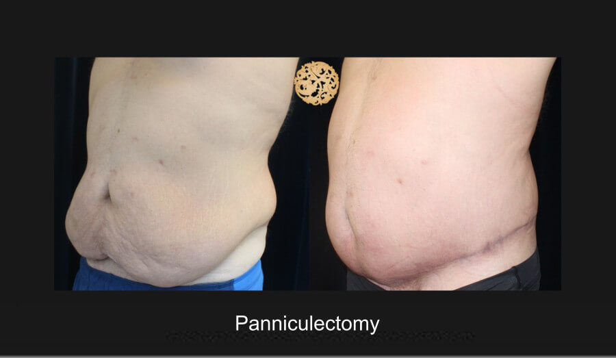 panniculectomy-4