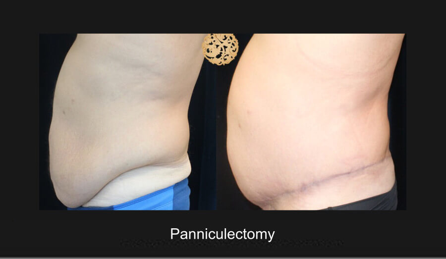 panniculectomy-5