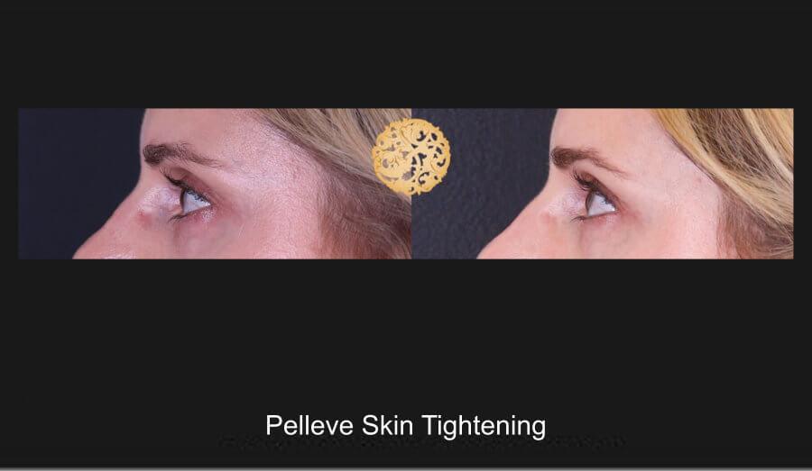 Pelleve Skin Tightening Gallery