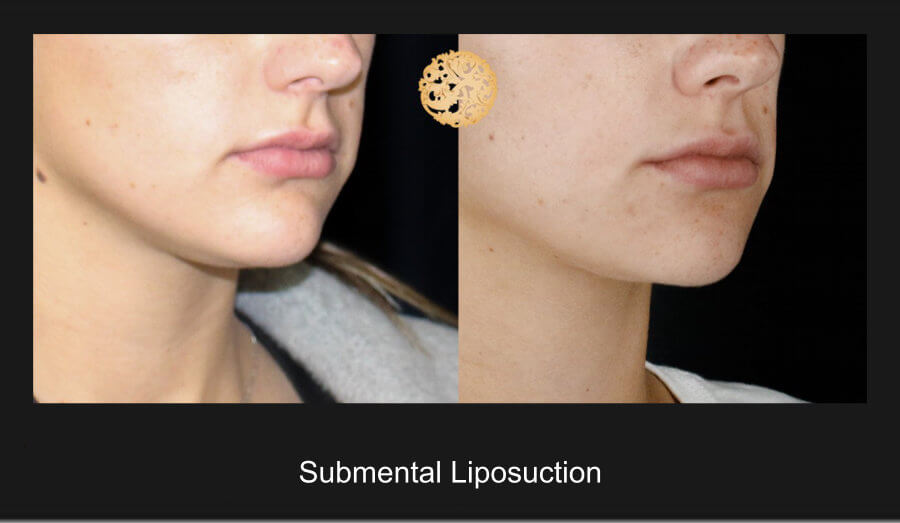 neck-liposuction-13