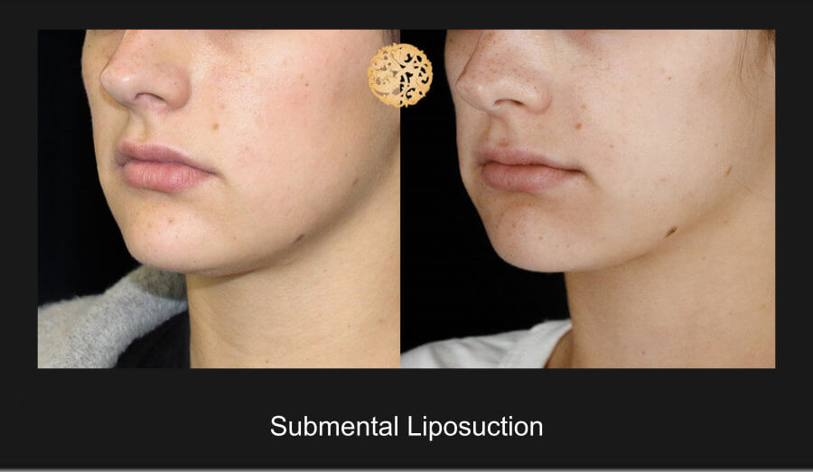 neck-liposuction-15