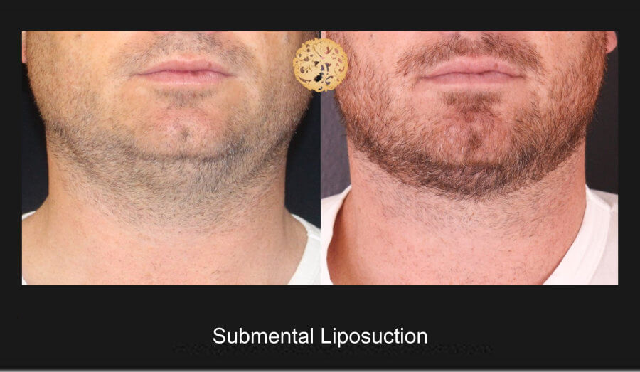 neck-liposuction-14