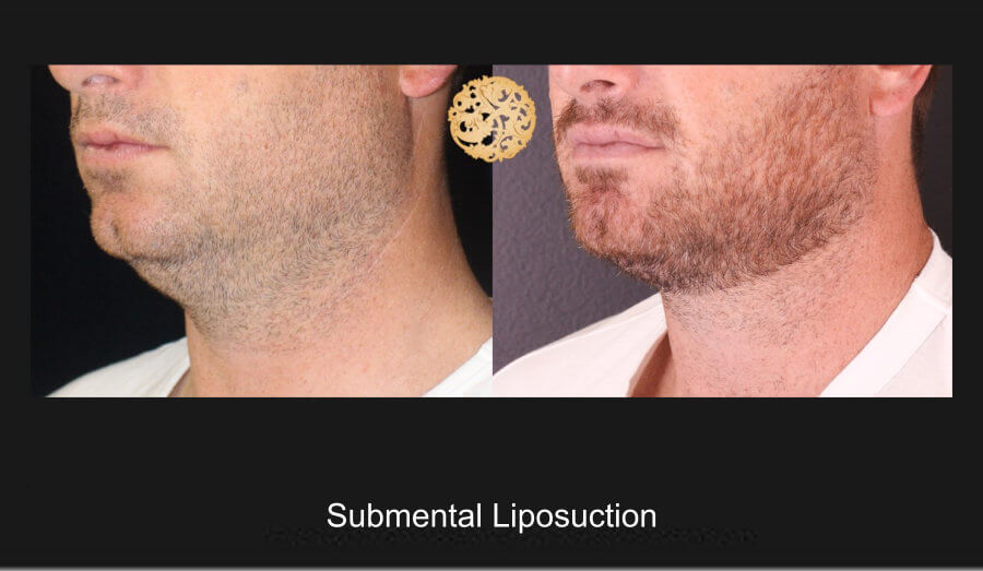 neck-liposuction-16
