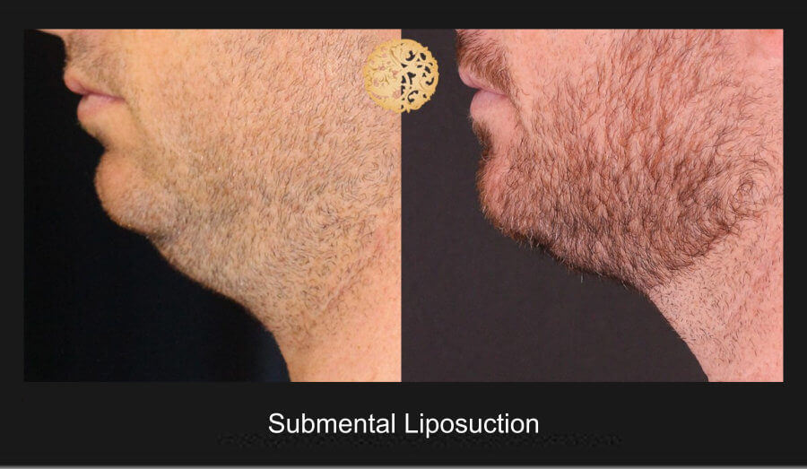 neck-liposuction-18