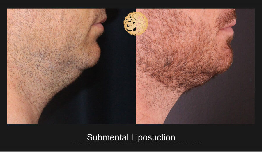 neck-liposuction-20