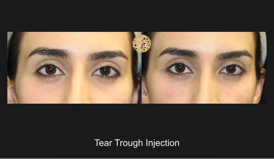 tear-trough-1a