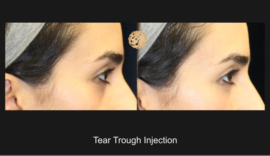 tear-trough-1b