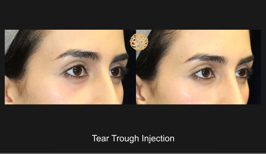 tear-trough-1c