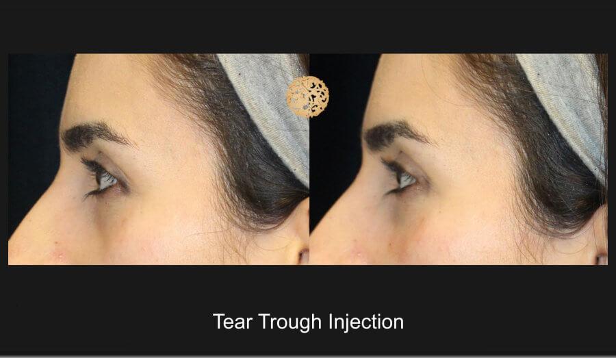 tear-trough-1d