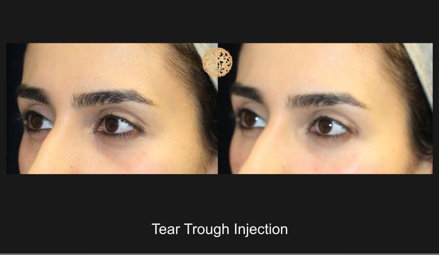 tear-trough-1e