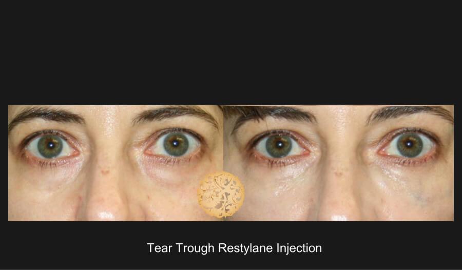 tear-trough1