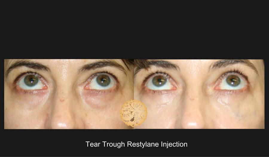 tear-trough2