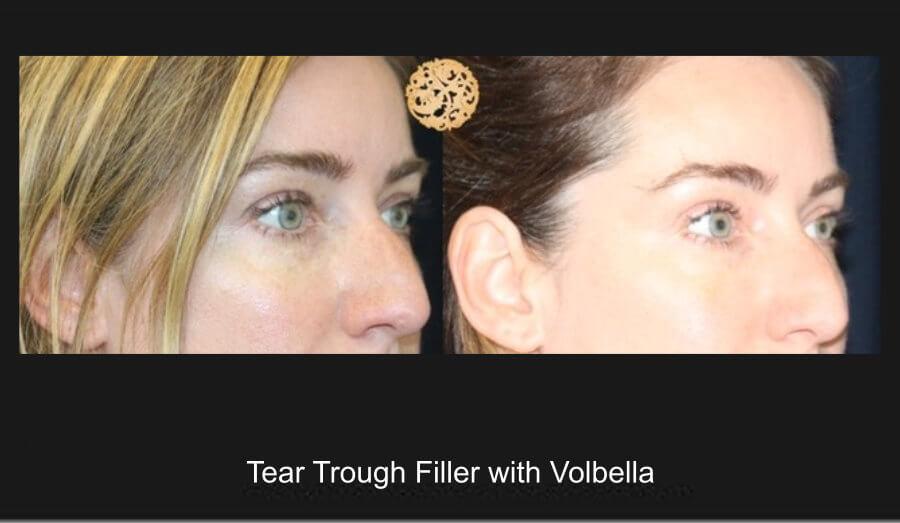 ttf-volbella-1