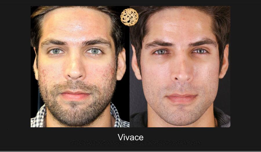 vivace-1a