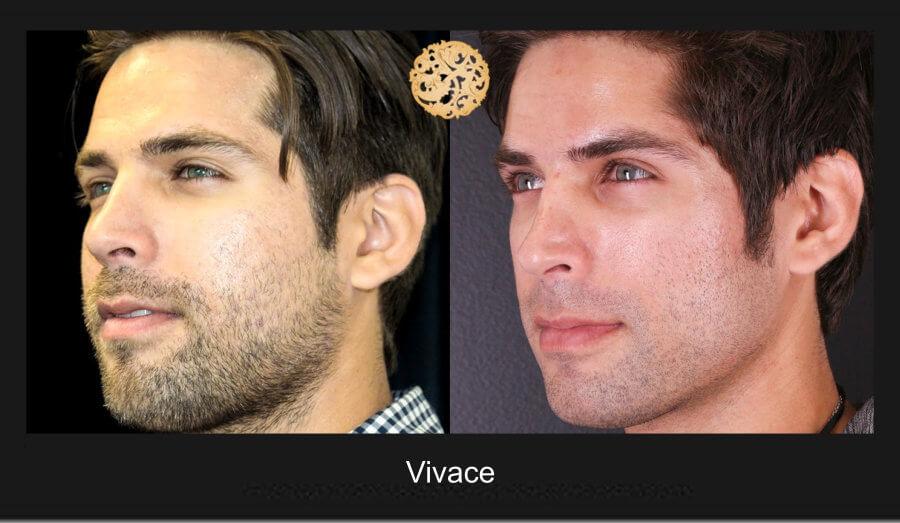 vivace-1b