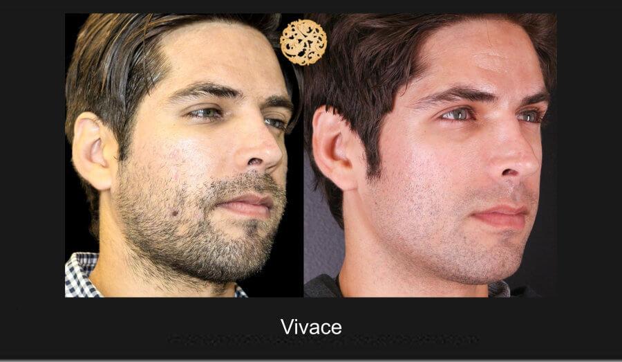 vivace-1c