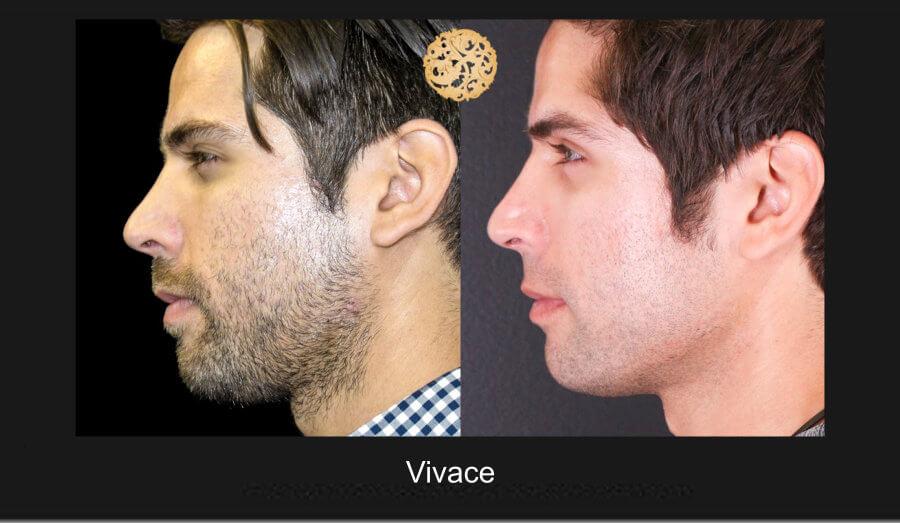vivace-1d
