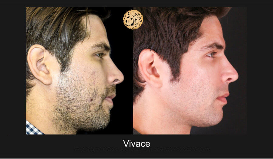 vivace-1e