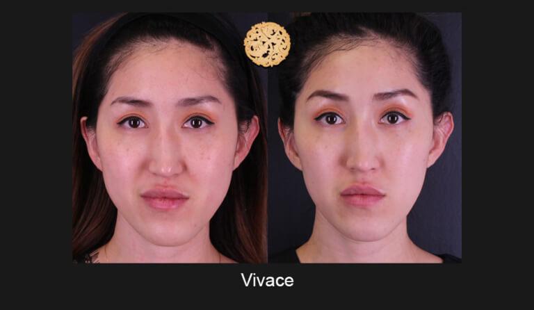 vivace-slide1-768x446