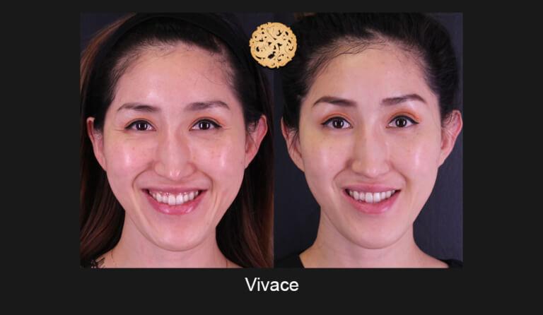 vivace-slide2-768x446