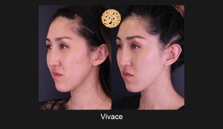 vivace-slide3-768x446