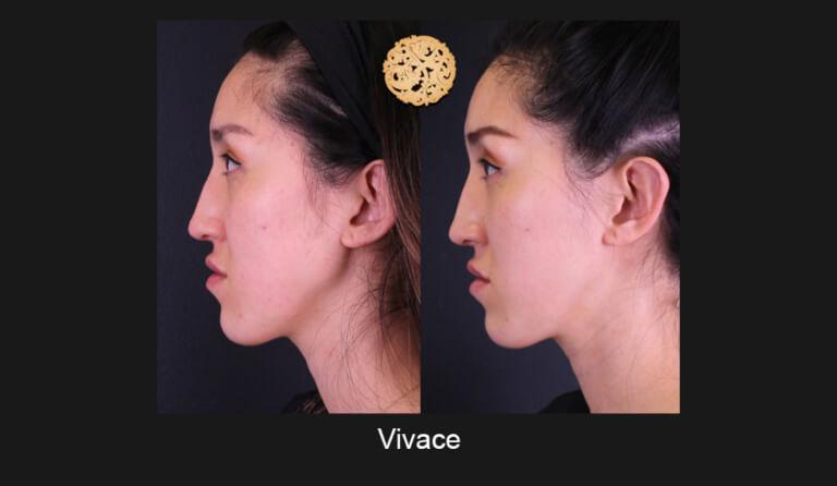 vivace-slide4-768x446