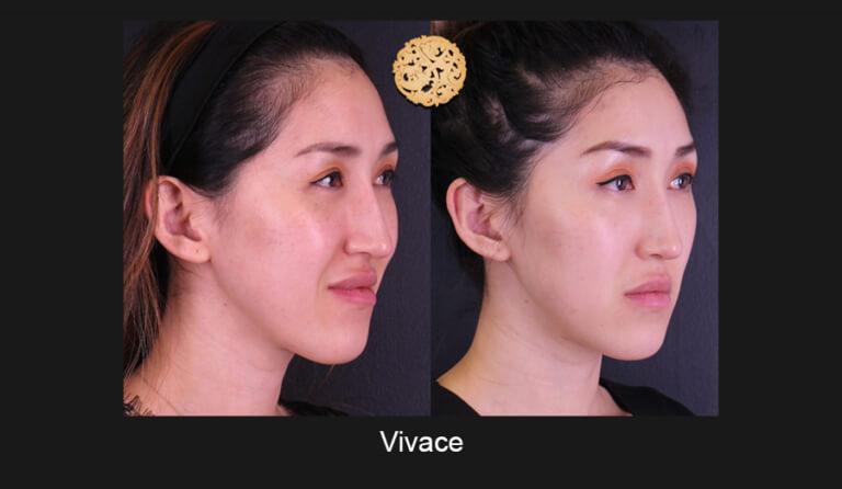 vivace-slide5-768x446