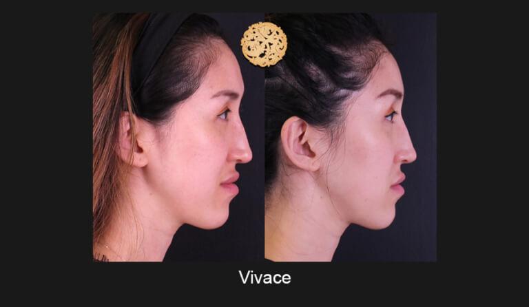 vivace-slide6-768x446