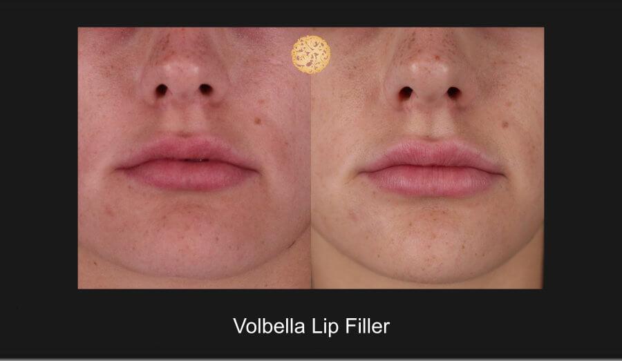 volbella-lip-1a