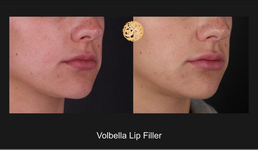 volbella-lip-1c