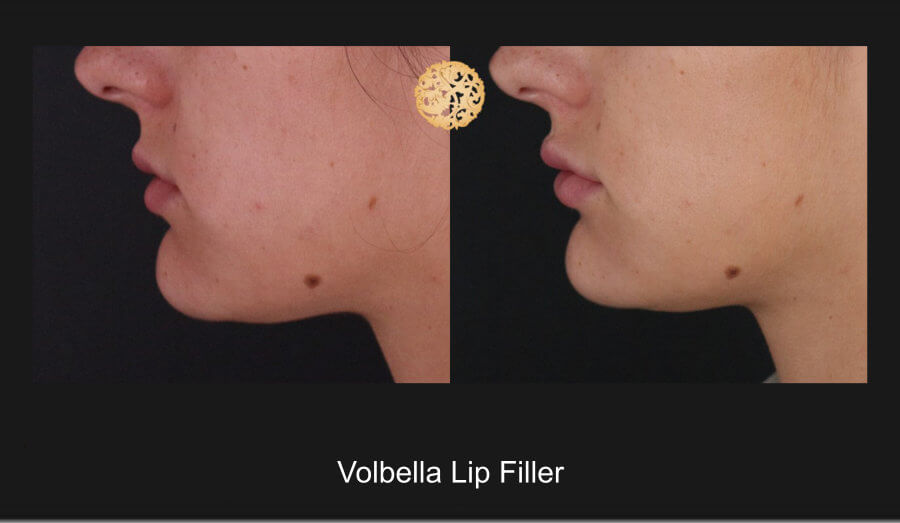 volbella-lip-1d