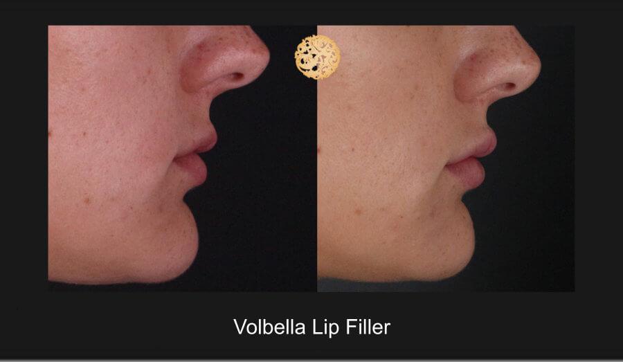volbella-lip-1e