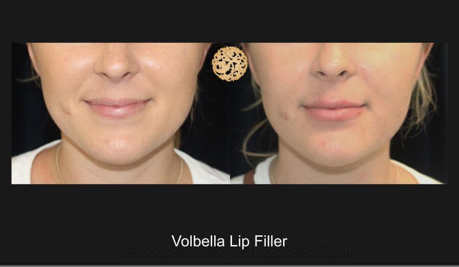 volbella-lip-filler-1a