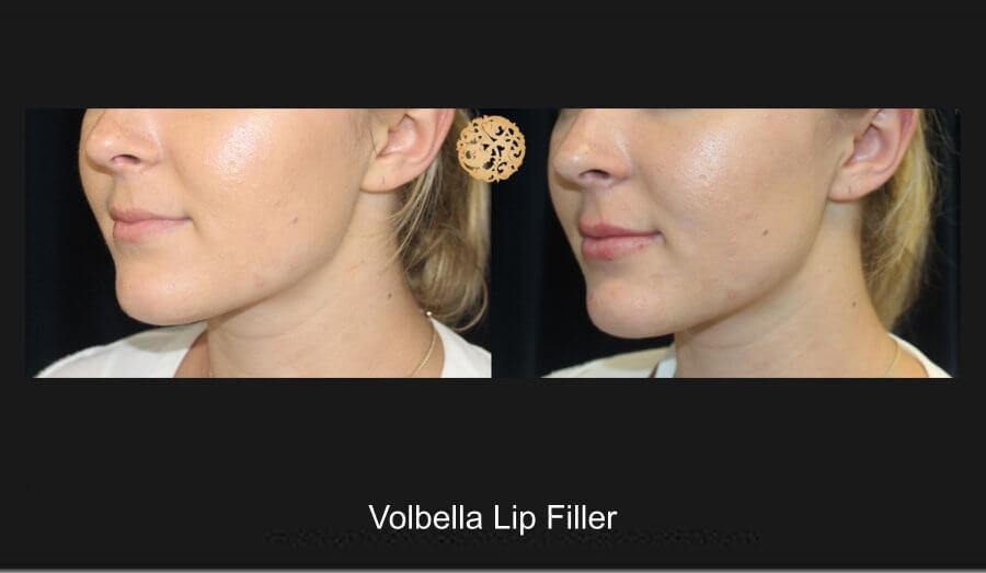 volbella-lip-filler-1b