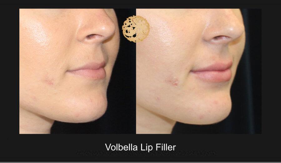 volbella-lip-filler-1c