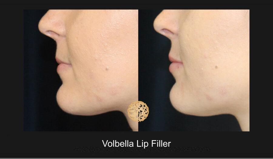 volbella-lip-filler-1d
