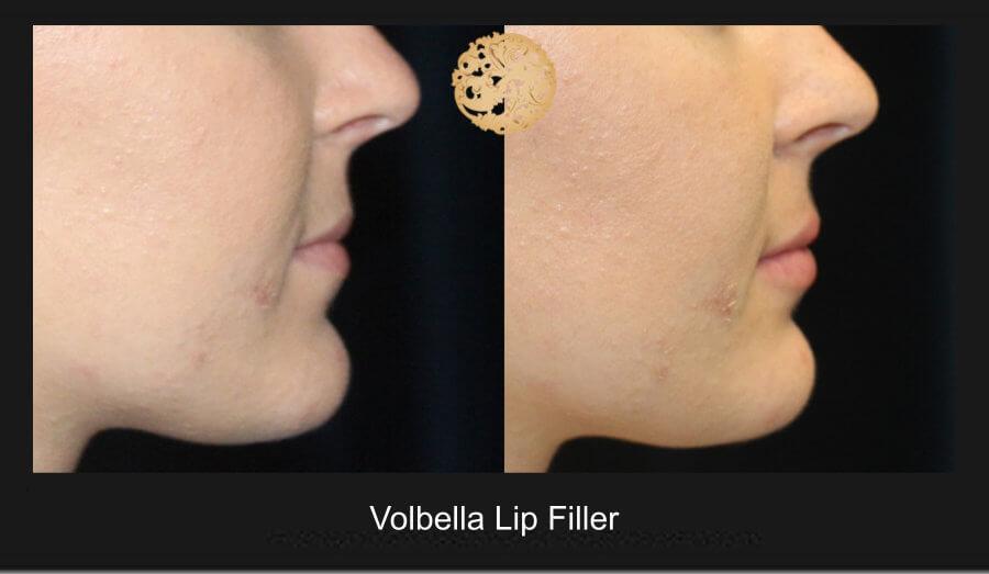 volbella-lip-filler-1e