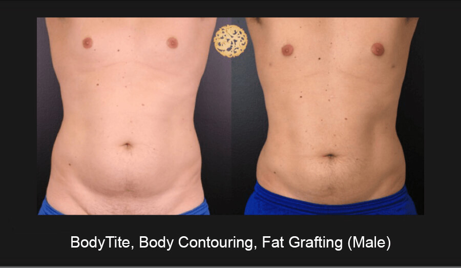 BodyTite-Body-Contouring-Male-1