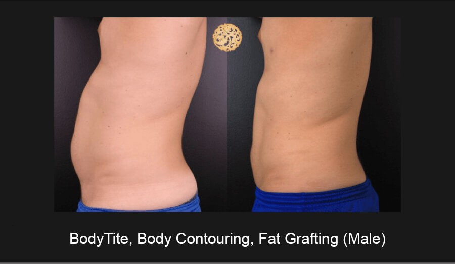 BodyTite-Body-Contouring-Male-4