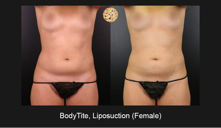 BodyTite-Liposuction-Female-1